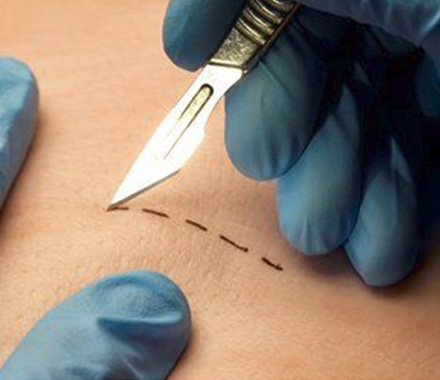 Planning the Orientation of Skin Incisions