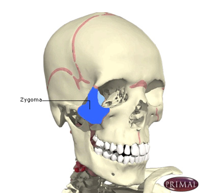 Zygomatic Complex and Nasal Injury